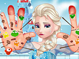 Холодное сердце: Эльза лечит руки