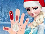 Холодное сердце: лечить руку Эльзы