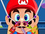 Лечить нос Марио