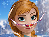 Лечить нос Анне Холодное сердце