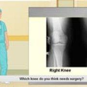 Игра Игра Виртуальная хирургия коленного сустава